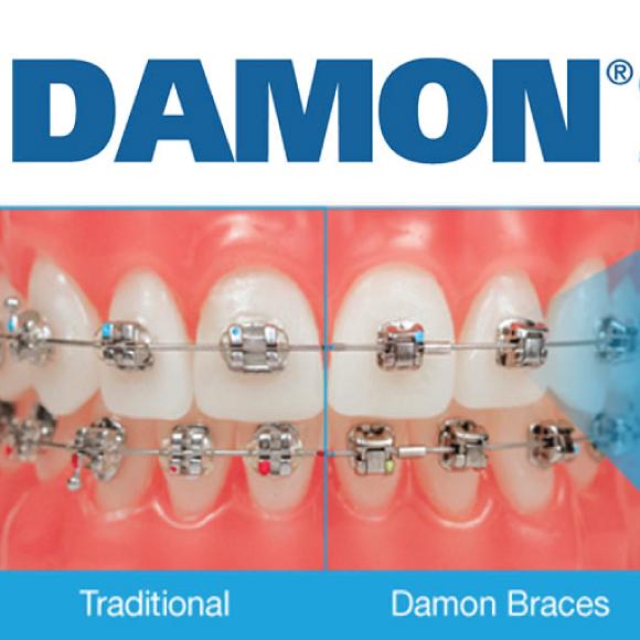 damon braces images
